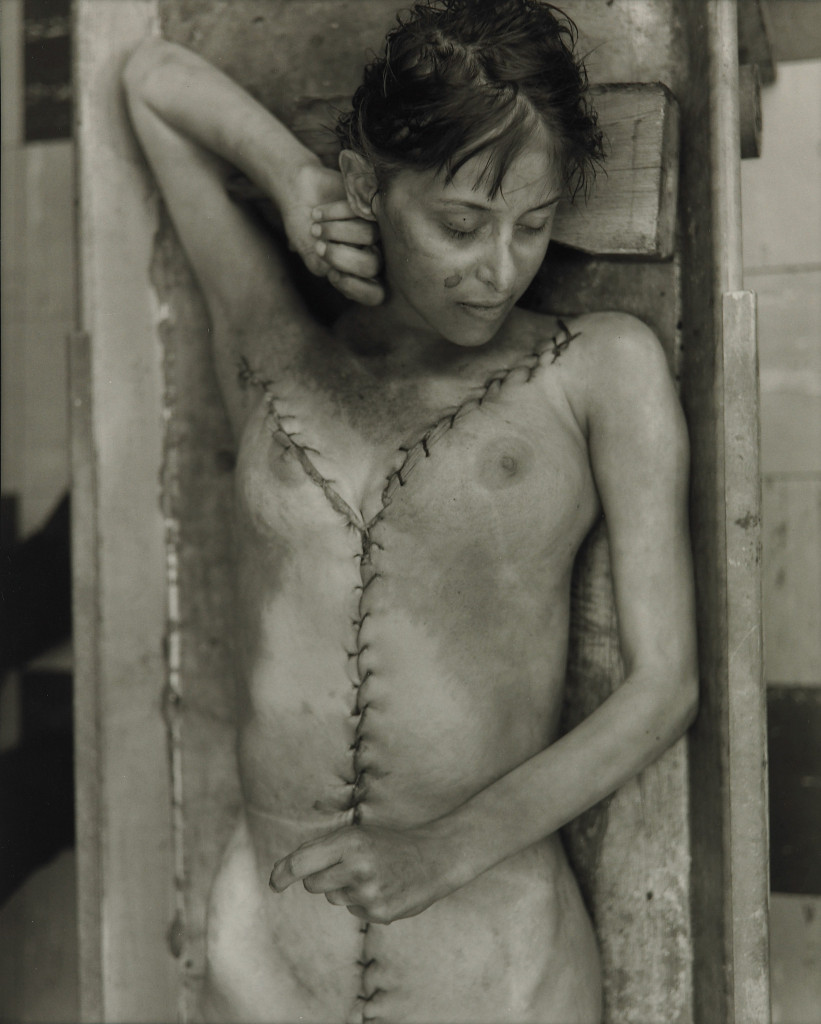 Woman who died in her sleep' (série Morgue)