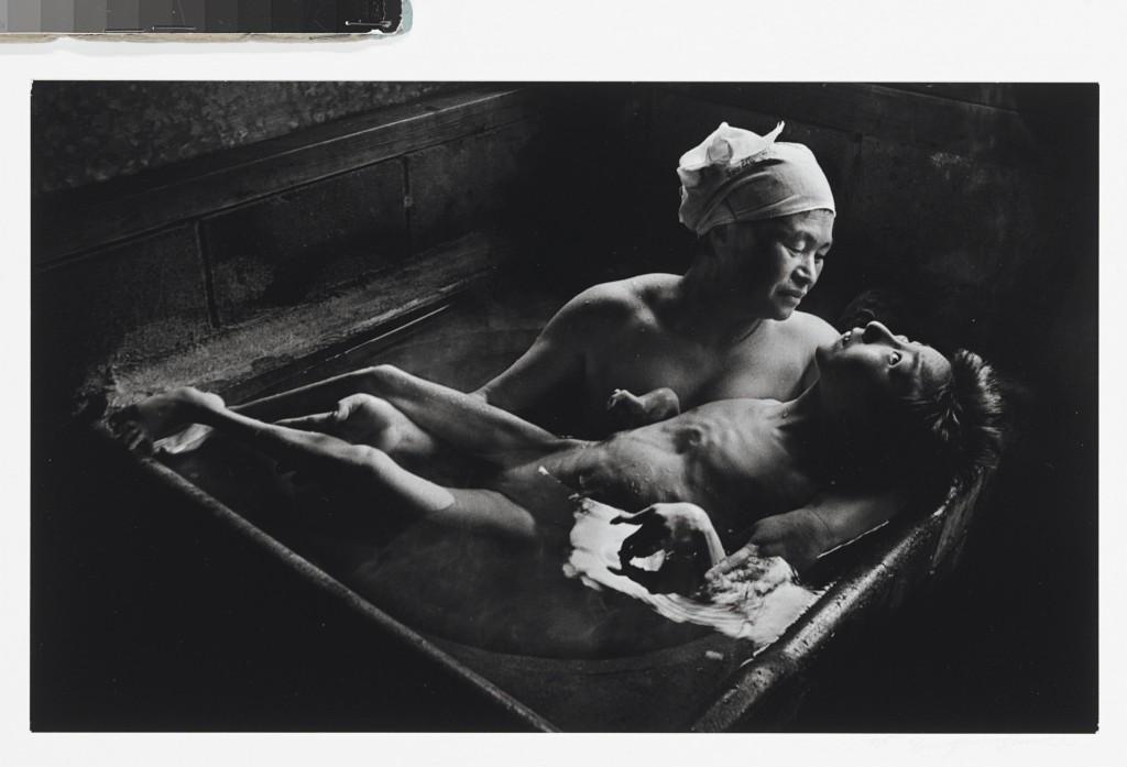Tomoko Uemura in her bath, Minamata, Japan, 1972